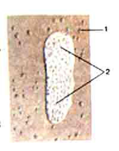 Лимфоидные узелки и лимфоидная бляшка в стенке тонкой кишки