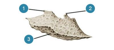 Нижняя носовая раковина (concha nasalis inferior)  Вид со стороны полости носа