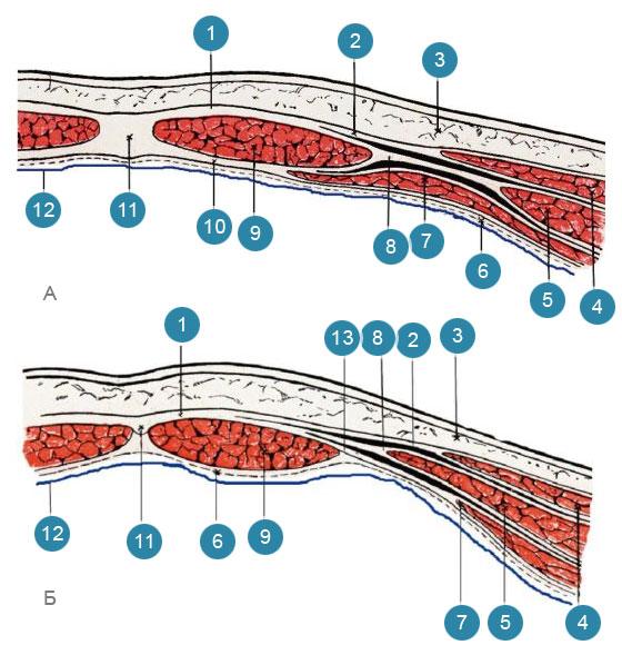 Влагалища прямых мышц живота (vaginae mm. recti abdominis) на поперечном разрезе передней брюшной стенки на разных ее уровнях
