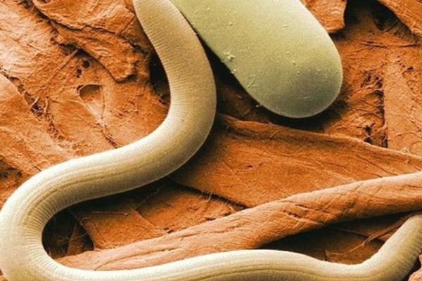 виды паразитов в организме человека симптомы фото