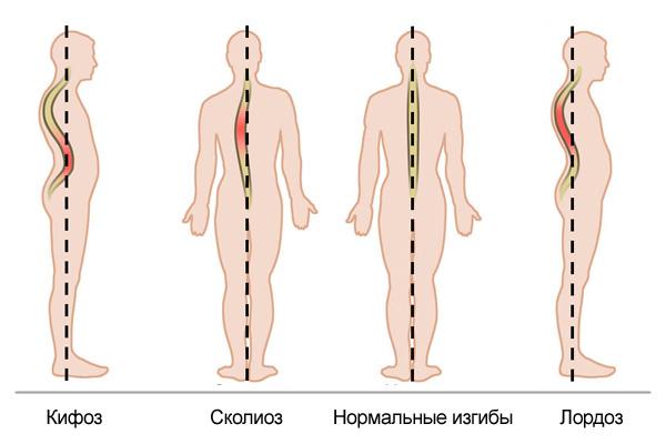 Кифоз, лордоз и сколиоз позвоночника. Анатомия человека