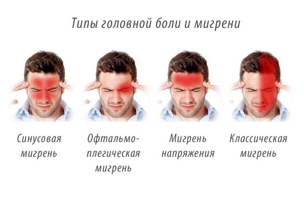 Чем снять боль в глазу при мигрени