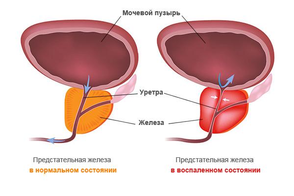 Лечение хронического простатита санкт петербурге